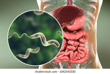 Campylobacter bacteria in intestine, C. jejuni, C. fetus, Gram-negative S-shaped motile bacteria the causative agent of food-borne infection campylobacteriosis, 3D illustration