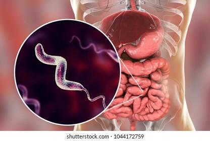 Campylobacter bacteria in intestine, C. jejuni, C. fetus, Gram-negative S-shaped motile bacteria the causative agent of food-borne infection campylobacteriosis, 3D illustration