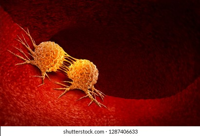 Cancer cell dividing and treatment for malignant cancer cells in a human body caused by carcinogens with a cancerous cell as an immunotherapy symbol and medical therapy as a 3D illustration.