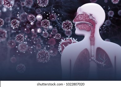 Cancer cells infected the Human Respiratory System.3d illustration
