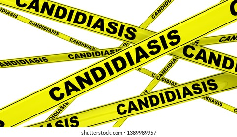 Candidiasis. Yellow warning tapes with black words CANDIDIASIS (Candidiasis is a fungal infection due to any type of Candida). Isolated. 3D Illustration
