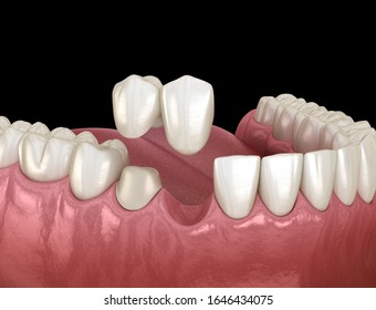 Cantilever bridge made from ceramic, frontal tooth recovery. Medically accurate 3D animation of dental concept