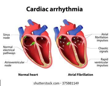 Cardiac arrhythmia. cardiac dysrhythmia or irregular heartbeat. Medical illustration