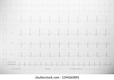 Cardiogram with lined paper as a background for a medical publication, annual report, etc.
