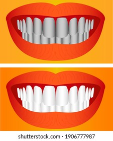 Care of teeth. Beautiful young woman teeth before and after whitening.