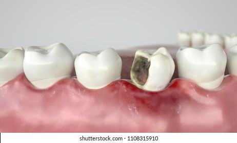 Caries in three stages - Stage 2 strong caries attack - 3D Rendering