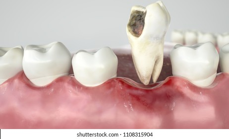 Caries in three stages - Stage 3 tooth extraction - 3D Rendering
