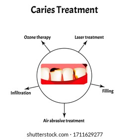 Caries treatment. Bad breath. Halitosis. The structure of the teeth and oral cavity with caries. Diseases of the teeth. Infographics. illustration on isolated background.