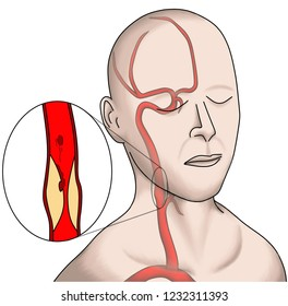 The carotid artery stenosis is one of the high risk of ischemic stroke. It make the artery to artery embolization. The surgical operation or carotid intervention are the major treatment.