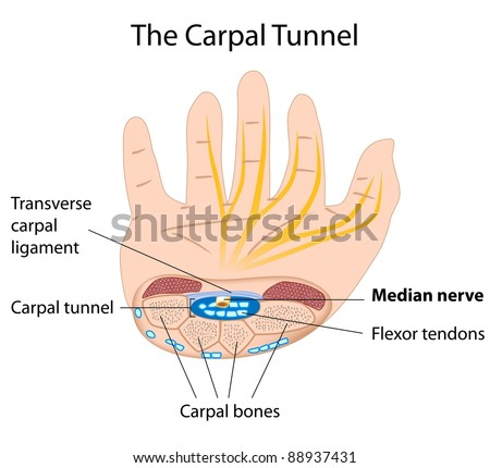 Carpal Tunnel Syndrome Stock Illustration 88937431 Shutterstock
