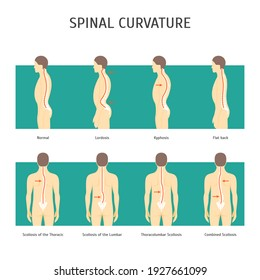 Cartoon Back with Scoliosis Card Poster Spine Human Health Care Concept Element Flat Design Style. illustration