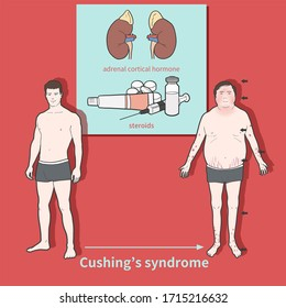 Cartoon medical illustration to explain Cushing's syndrome