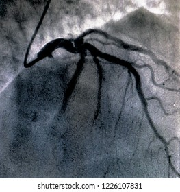 Catheterization. Cardiac ventriculography is a medical imaging test used to determine a patient cardiac function in the right or left ventricle