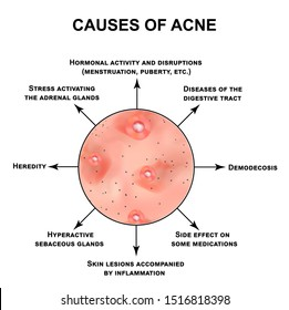 Causes of acne. Pustules, papules, comedones, blackheads, acne on the skin. Infographics. illustration on isolated background.