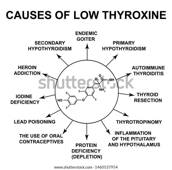 Causes Low Thyroxine Thyroid Hormone Thyroxine Stock Illustration
