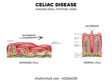 Celiac disease affected small intestine. Healthy and unhealthy villi with damaged cells. Nutrients are not absorbed because of reduced surface area.