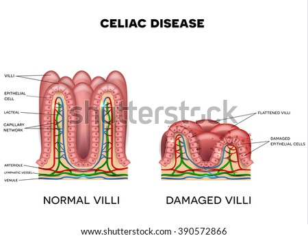 celiac disease affected small intestine lining stock illustration celiac diverticulitis celiac disease affected small intestine lining on a white background healthy and damaged villi