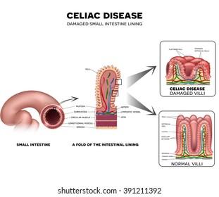 Celiac disease Small intestine lining damage. Healthy and damaged villi.