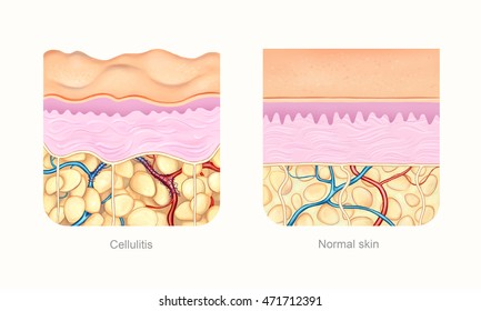 Cellulite skin compare to normal skin visualization