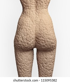 cellulite texture on the human skin (illustration concept)