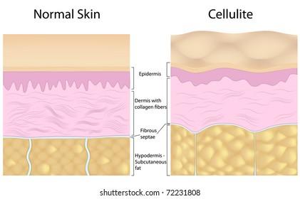 Cellulite versus smooth skin, labeled