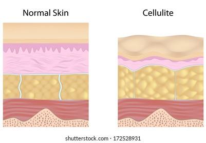Cellulite versus smooth skin unlabeled