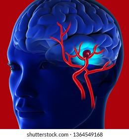Cerebral aneurysm 3d rendering. Brain aneurysm closeup.