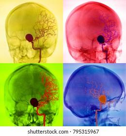 cerebral aneurysm, angiography