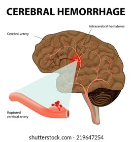 Cerebral hemorrhage or intracerebral hemorrhage. Rupture of a cerebral artery it results in the destruction of nerve cells as well as the formation of a hematoma.