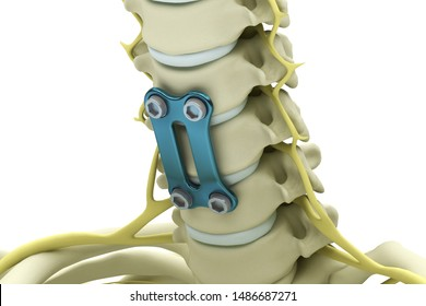 Cervical vertebrae fixed with a metal plate and screws isolated on a white background. 3d render illustration.