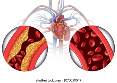 Chelation therapy and heart disease treatment concept as an alternative medicine for human blood circulation disease with 3D illustration elements.