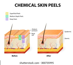 chemical peeling or procedure chemexfoliation. Human skin layers