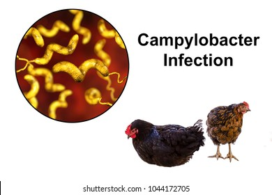 Chicken meat as the source of Campylobacter infection, medical concept. 3D illustration showing chicken and close-up view of Campylobacter bacteria