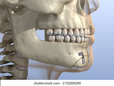 Chin Reduction (Osseous Genioplasty) surgery. Medically accurate dental 3D illustration.