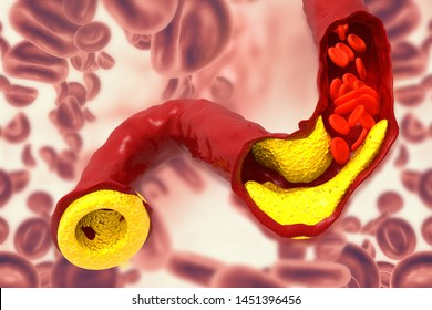 Cholesterol plaque in artery. 3d illustration