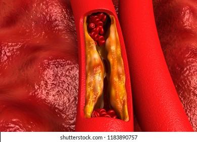 Cholesterol plaque in artery. 3d render