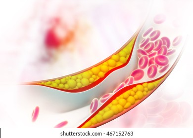 Cholesterol plaque in artery on science background. 3d illustration
