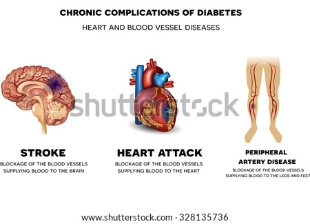 Chronic Complications Diabetes Heart Blood Vessel Stock Illustration