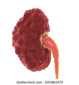 Chronic pyelonephritis, medical concept, 3D illustration showing irregular scarred cortical surface particularly at poles and dilated ureter