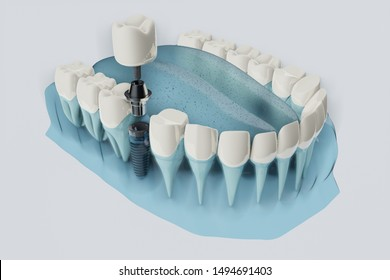 Close up Component of Dental implants. Blue color transparent. 3D illustration, 3D rendering.