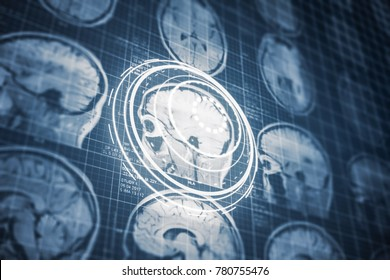 Close up series of a CT scan with human head on it and future hud design. X-ray medicine and UI concept