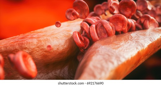 Closeup of a atherosclerosis- 3D rendering