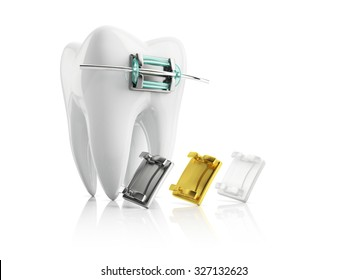 closeup metal bracket on tooth, with samples of metallic gold and ceramic braces, isolated on white background