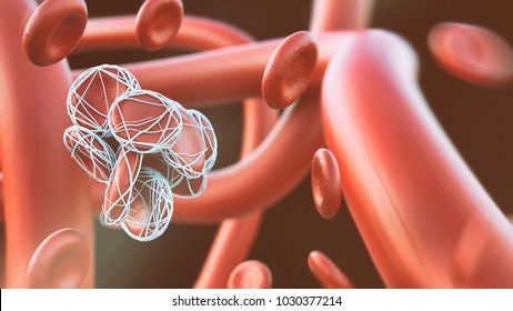 Closeup of a Thrombose -- 3D rendering
