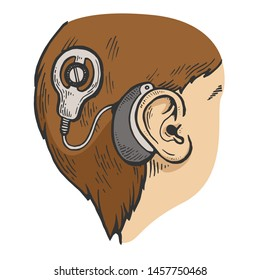 Cochlear implant on child head color sketch engraving raster illustration. Scratch board style imitation. Black and white hand drawn image.