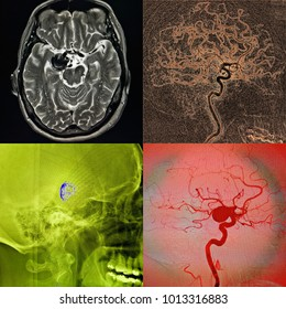Coiling of the cerebral aneurysm, angiography