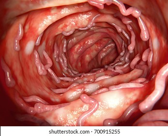 Colon affected by ulcerative colitis, with massive pseudopolyps, 3d rendering. It is an inflammatory disease of the human bowel. Pseudopolyps are not neoplastic but inlammatory tissue.