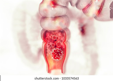 Colon cancer. Cancer attacking cell. Colon disease concept. 3d illustration