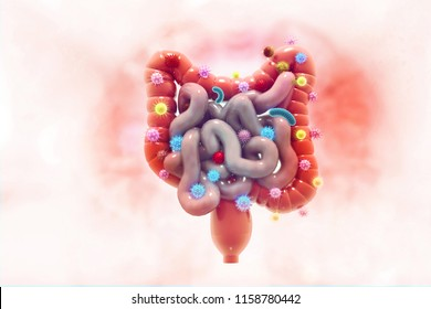 Colon cancer. Cancer attacking cells. Colon disease concept. 3d illustration