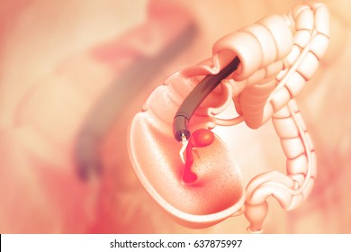 colon cancer. colonoscope in the colon. polyp removal.3d illustration